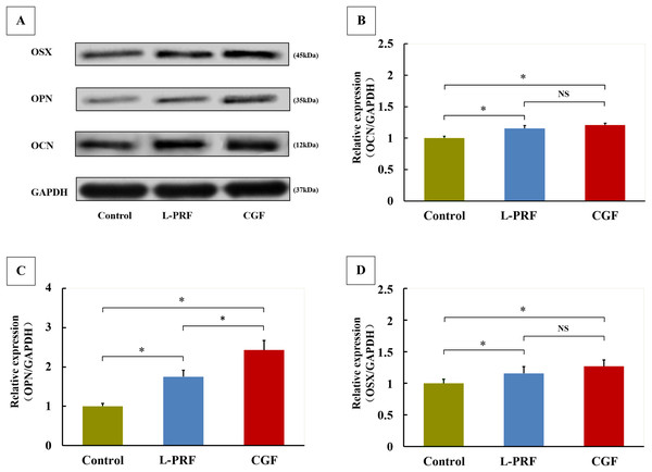 Effects of L-PRF and CGF on osteogenic markers expression of PDLFs (n = 4 for each group).