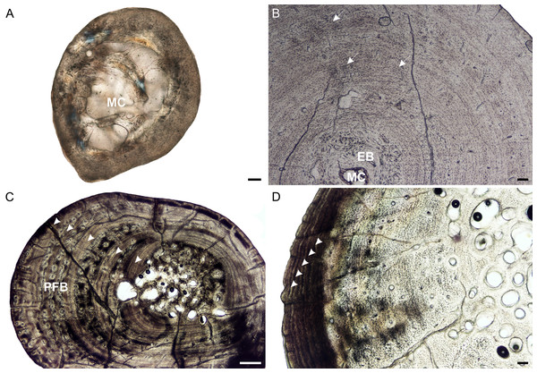 Radial osteohistology of Stigmochelys pardalis.