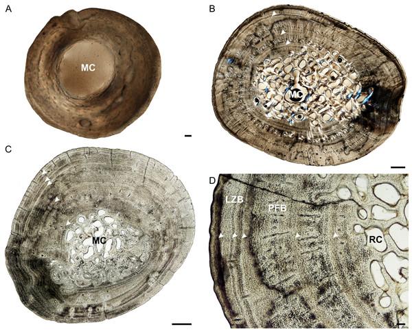 Tibia osteohistology of Stigmochelys pardalis.