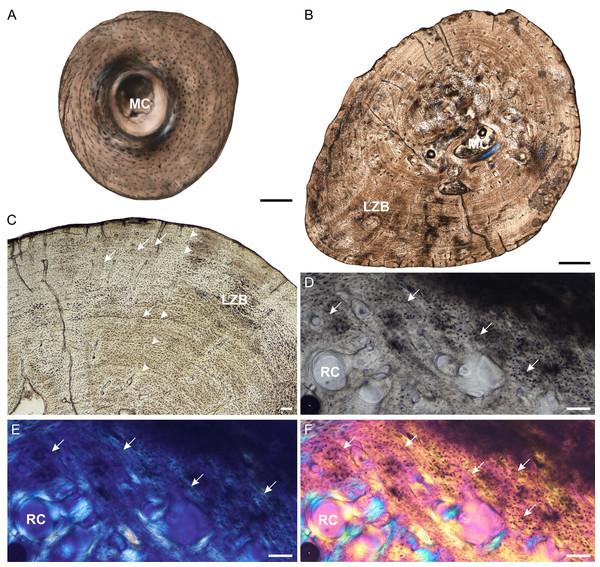 Fibula osteohistology of Stigmochelys pardalis.