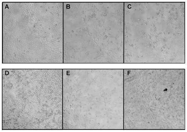 Morphological changes of the A549 (A–B) and MCF7 (D–F) cells after treatment with fractions BF3 (B and E) or BF3.3 (C and F) for 72 h detected by phase contrast microscopy.
