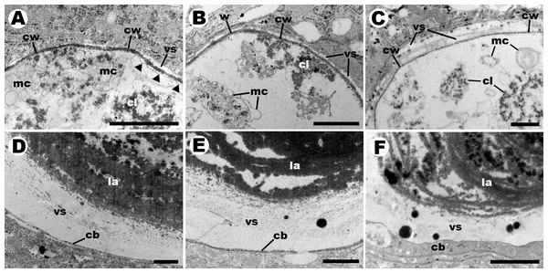Details of endosymbiotic corpuscles (transmission electron microscopy).