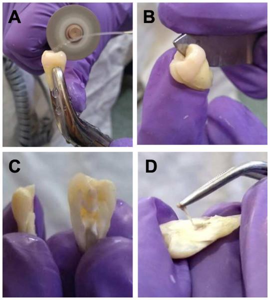 Cutting technique of vertical dental organ to obtain pulp.