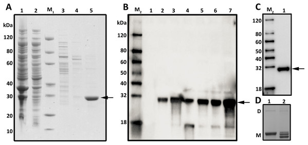 SDS–PAGE, Western blot and Native PAGE analysis of the expression and purification of MurI in E. coli BL21 (DE3).