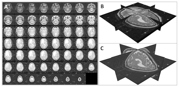 Volume reconstruction from DICOM images: (A) stack of 2D slices, (B) reconstructed 3D volume, and (C) resampled 3D volume.