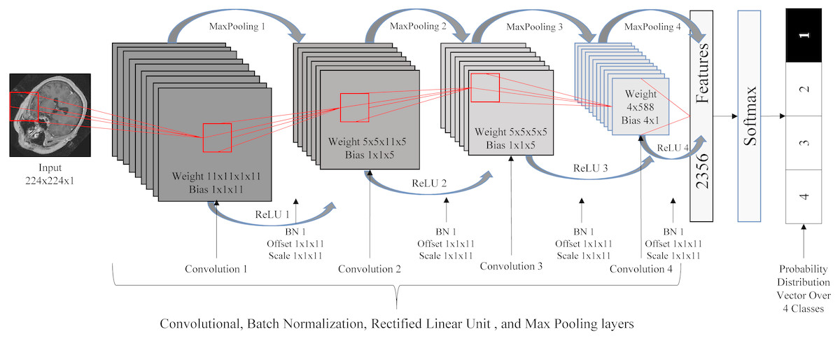 A rotation and translation invariant method for 3D organ