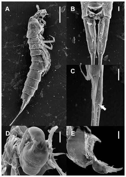 Scanning electron microscopy photographs of Quinquelaophonte enormis sp. nov.