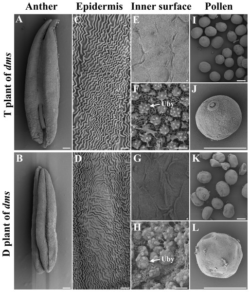 The scanning electron micrographs of the anthers, anther epidermis, anther inner surface, and pollen grains in the T and D plants of dms at the trinucleate stage.