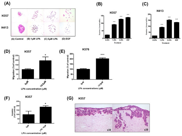 Effect of LPA on OSCC cell migration and invasion.