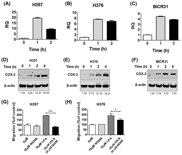 The effects of LPA on OSCC migration are mediated through COX-2.
