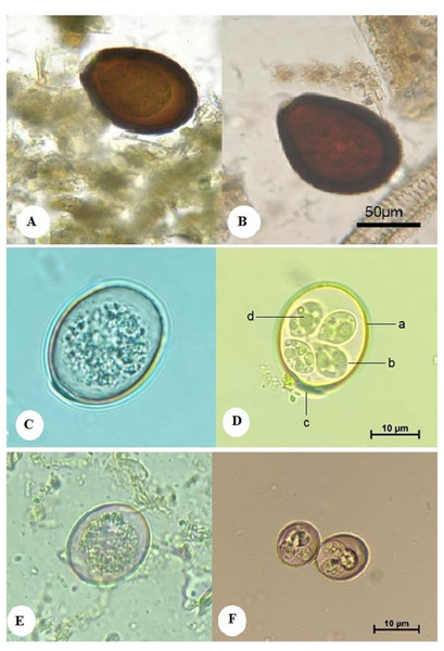 Morphological characteristics of isolated Eimeria spp. showing: E. cameli oocysts (Bar = 50 µm).
