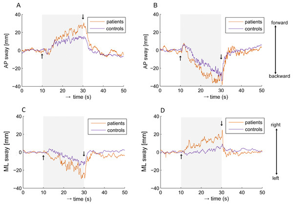 Averaged group responses of COP shift to visual stimulation.