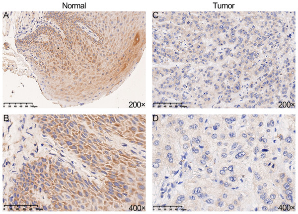 The protein expression of YTHDC2 in head and neck squamous cell carcinoma (HNSCC) and normal oral tissues.