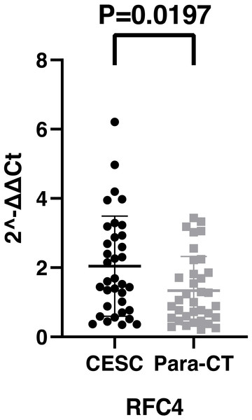 The expression of RFC4 on CESC was significantly different compared with para-cancerous tissues from the result of qRT-PCR.