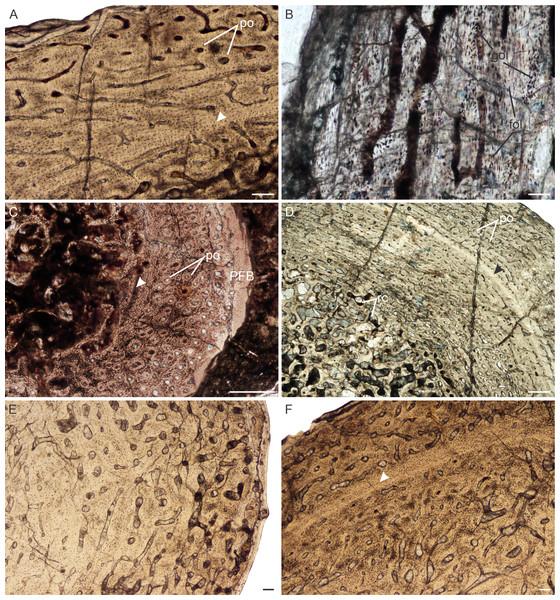 Bone histology of Lystrosaurusdeclivis, Age Class II–IV.