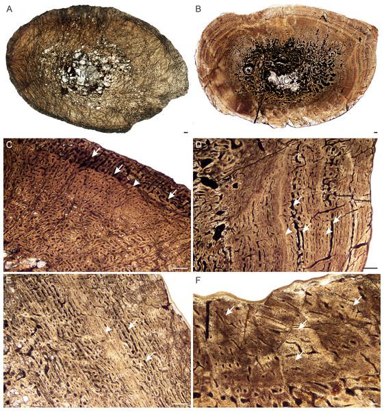 Transverse sections of the bone histology of Lystrosaurus maccaigi, Age Class II.