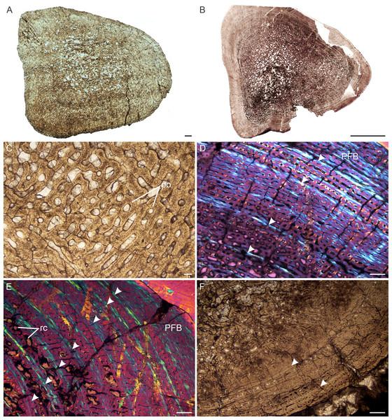 Transverse sections of the bone histology of Lystrosaurus maccaigi, Age Class III.