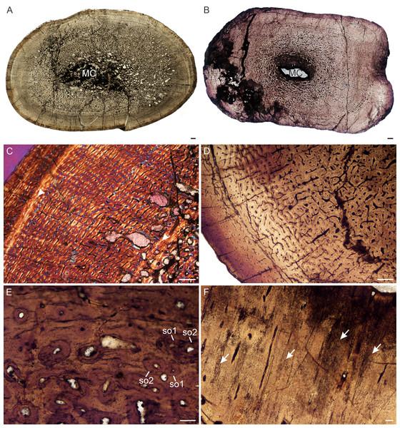 Transverse sections of the bone histology of Lystrosaurus maccaigi, Age Class IV.