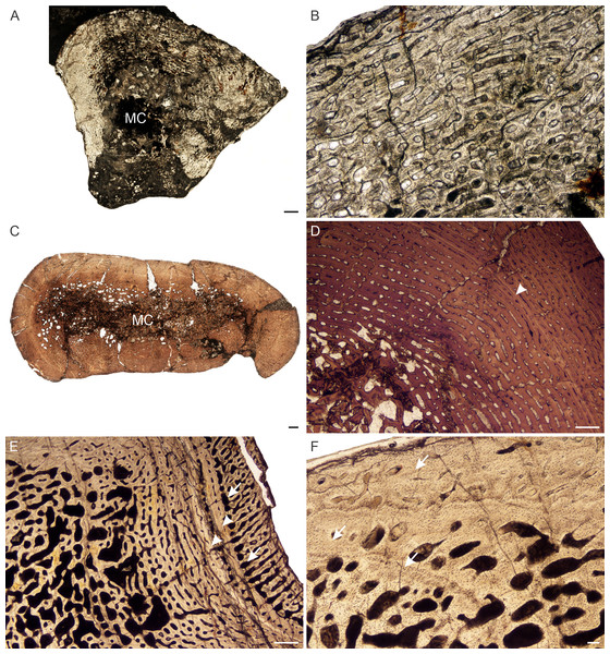 Transverse sections of the bone histology of Lystrosaurus curvatus, Age Class I, III.