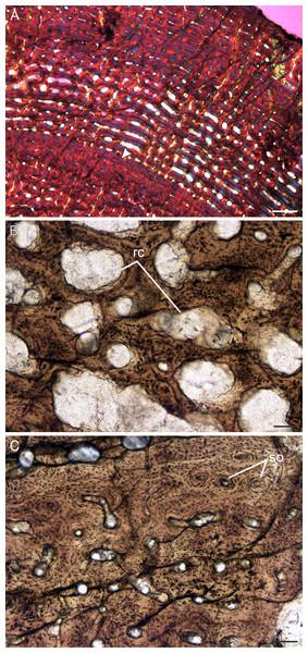 Transverse sections of the bone histology of Lystrosaurus murrayi, Age Class IV.