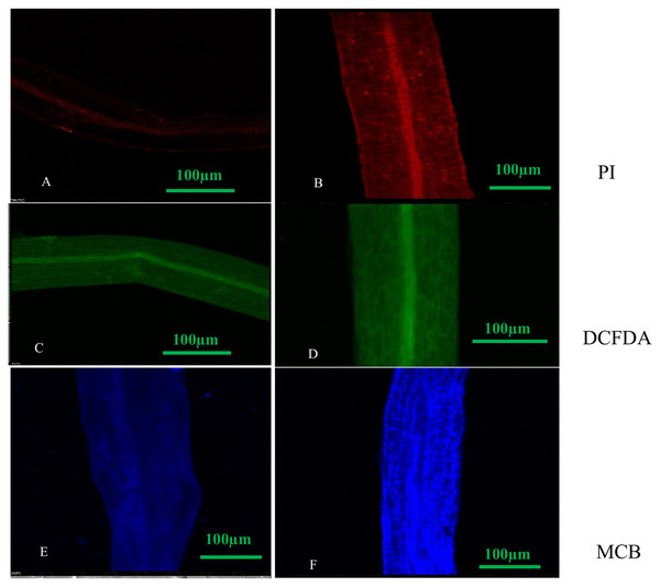 Confocal micrographs of control and DEP treated root samples of S. polyrhiza treated with different dyes: PI (propidium iodide), H2DCFDA (dichlorofluorosceindiacetate) and MCB (monochlorobimane). Scale bar = 100 µm.