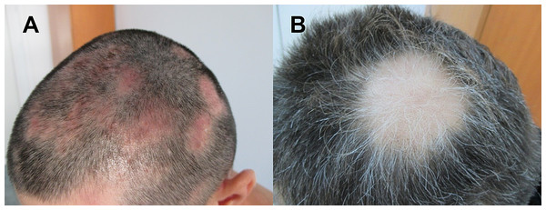 Images of patients suffering from patchy Alopecia Areata.
