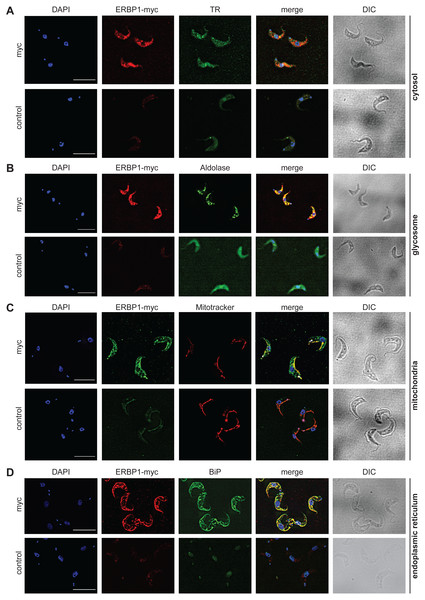 ERBP1-myc colocalises with the endoplasmic reticulum.