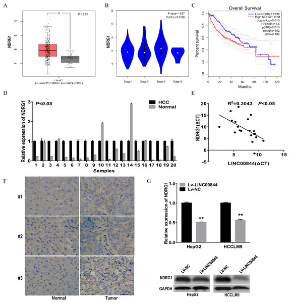 NDRG1 was highly expressed in clinical HCC tissues and cell lines and negatively correlated with LINC00844.