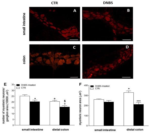 DNBS treatment-induced changes in myenteric neurons.
