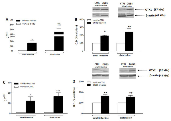 qRT-PCR and western blot analysis of OTX1 and OTX2 mRNA and protein levels in the rat small intestine and colon after DNBS-induced colitis.