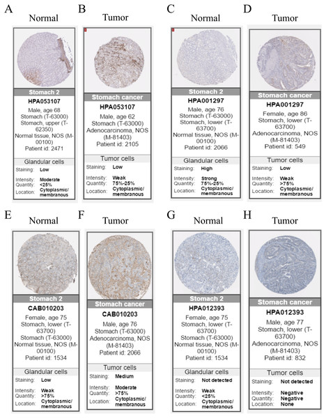 Immunohistochemistry of the five hub genes based on the Human Protein Atlas. There was no related IHC samples of CNRIP1 in the database.