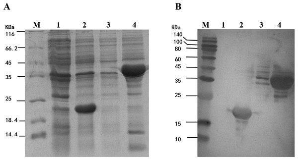 Analysis of the fusion protein Trx-His-mMpMn-SOD overexpressed in BL21 cells.