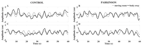 Exemplar time-series of body sway and moving room displacements of a representative control and a representative Parkinson's disease participant, with no information about the room movement (A and B) and with information and request to resist (C and D).