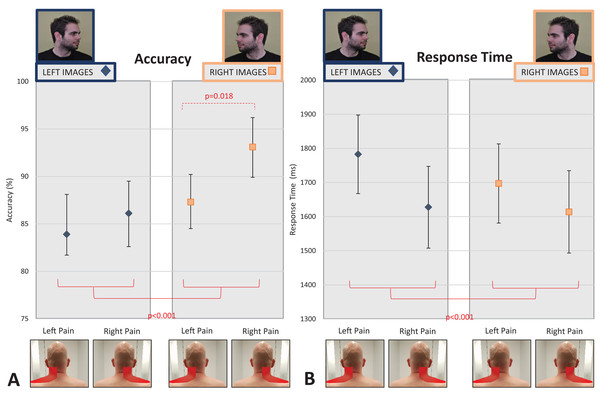 Effect of unilateral pain location (left- vs. right-sided neck pain) on left/right neck judgement performance.