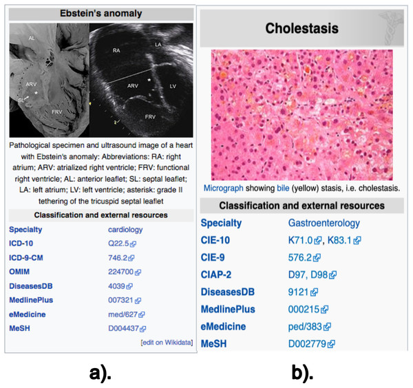 Screenshot of the Wikipedia content of infoboxes in two diseases.