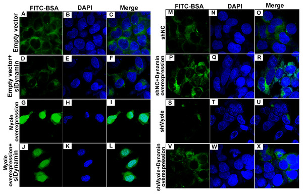Immunofluorescence showing Myo1e might promote MPC5 endocytosis BSA mediated by Dynamin (A–X). Scale bar, 50 µm.