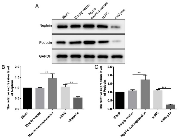 Western blot analyses showing the expression levels of nephrin and podocin in MPC5 cells treated with Myo1e overexpression/knockdown.