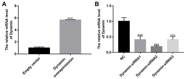 The effects of Dynamin overexpression or knockdown.