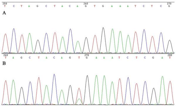 Sanger sequencing for BRAF V600E in colorectal cancer.