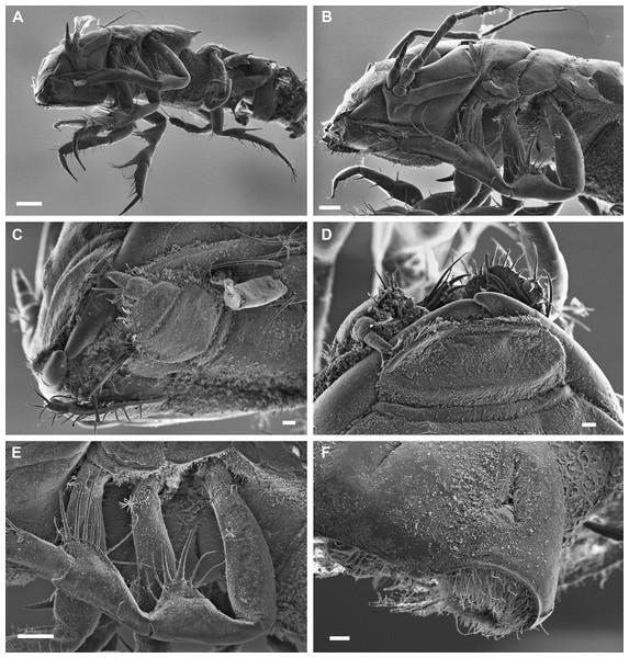 Macrostylis metallicola n. sp. paratype ♀ 959 (SMF 50948), scanning electron microscopy (SEM) images.