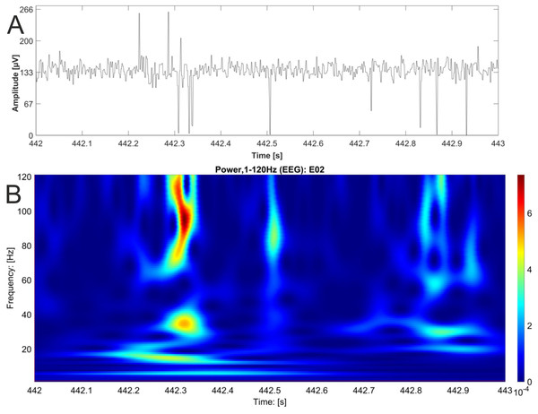 EEG raw data trace with nested activity of multiple bands.