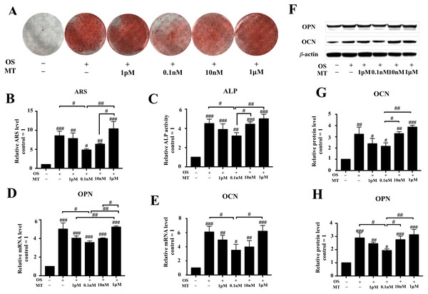 Effect of MT on osteogenic differentiation of hPDLSCs.