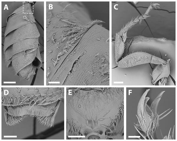 SEM of male X. sororitatis. n. sp.