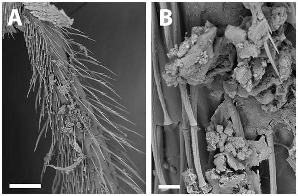 SEM of hind tibia of female X. sororitatis n. sp.