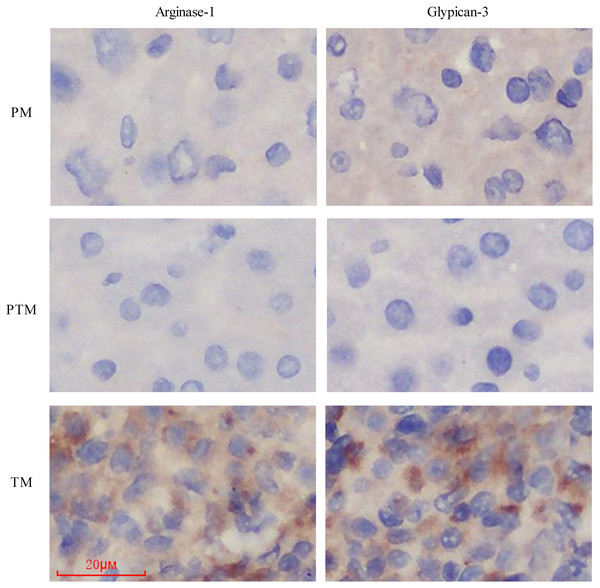 The expression of two cancer maker proteins, Arginase-1 and Glypican-3 in these different tissues using immunostaining.
