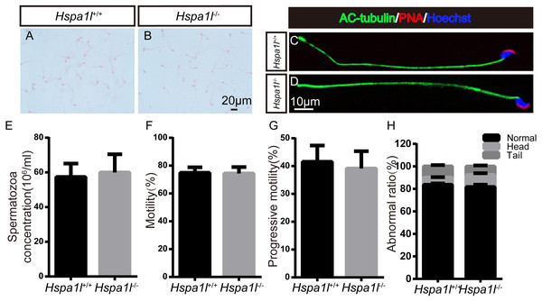 Spermatozoa appear normal in Hspa1l−∕− mice.