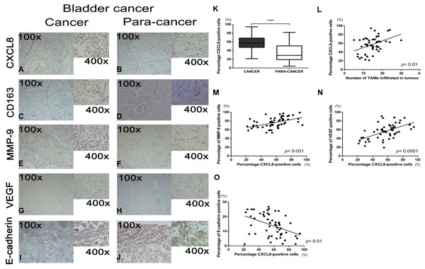 Recruitment of tumor-associatedmacrophages and CXCL8 expression in human bladder cancer, and the correlation between the expression of CXCL8 and the expression of MMP-9, VEGF, and E-cadherin.