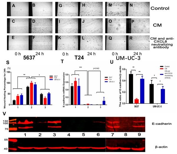AM-like PBM-derived macrophagesincrease the migration of bladder cancer cells through CXCL8.