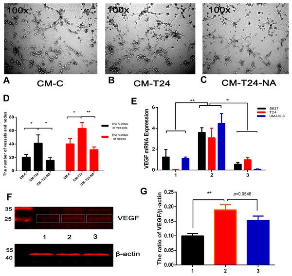 CXCL8-derived TAM-like PBM-derived macrophagespromote the pro-angiogenic ability of bladder cancer cells.