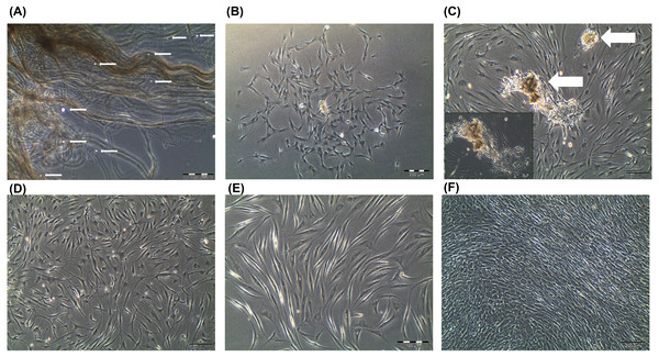 Primary human tenocytes (hTeno) monolayer culture derived from human Hamstring tendons (n=6).